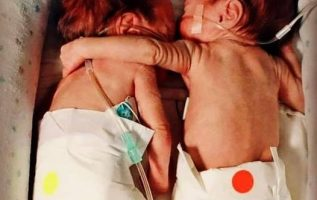 Αυτά τα εικονικά δίδυμα γεννήθηκαν 12 εβδομάδες πρόωρα - δηλαδή μιλάμε για κύηση... 3