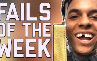 Are My Teeth Ok?: Best Fails of the Week | FailArmy